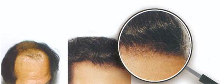 Microgreffes de cheveux